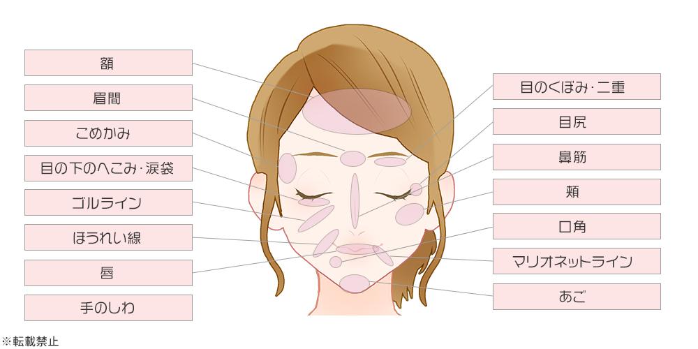 ヒアルロン酸注入箇所のイメージ